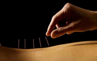 acupuncture cork
